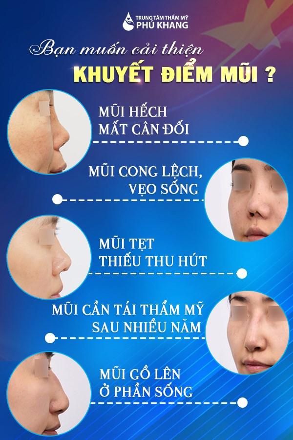 Những khuyết điểm mũi