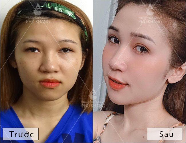 hình ảnh trước và sau khi cắt mí mắt và mở rộng khóe mắt