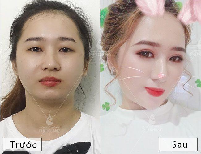 hình ảnh trước và sau khi cắt mắt hai mí