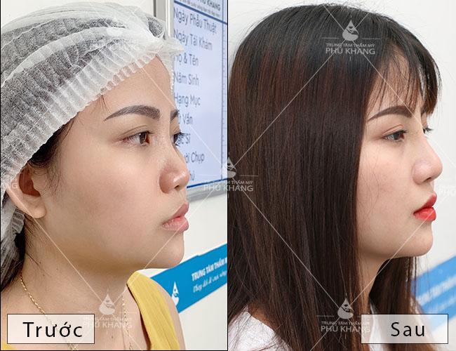 hình ảnh trước và sau khi nâng mũi bọc sụn