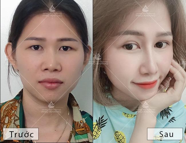 hình ảnh trước và sau khi nâng mũi bọc sụn và cắt mí mắt plasma