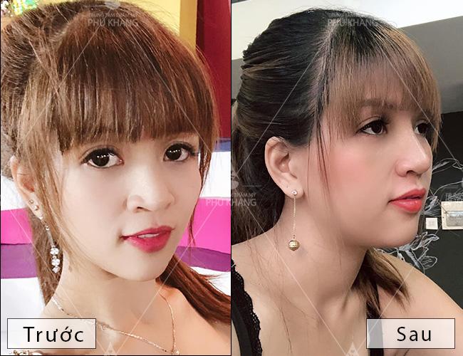 hiệu quả trước và sau khi nâng mũi bọc sụn và thu gọn cánh mũi