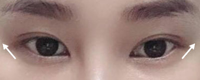 mắt bị hếch