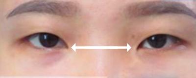 mắt bị xa nhau