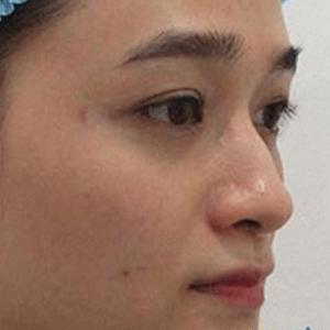 bảng giá sửa mũi