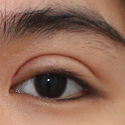 lấy mỡ bọng mắt