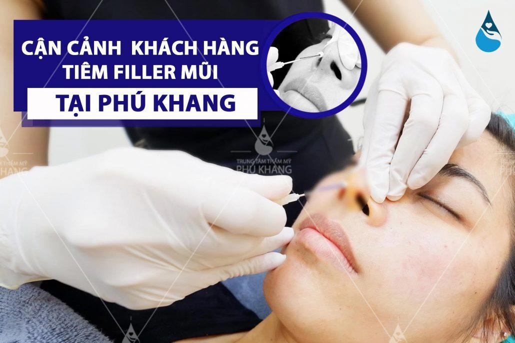 Cận cảnh tiêm filler mũi tại Phú Khang