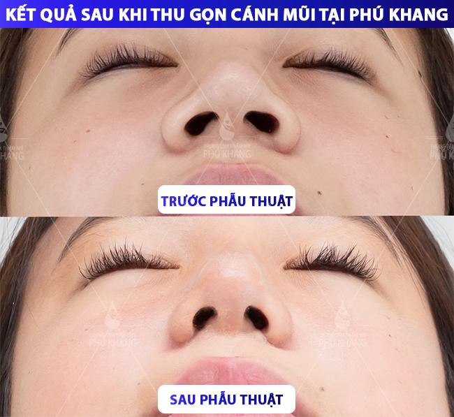 hình ảnh khách hàng thu gọn cánh mũi