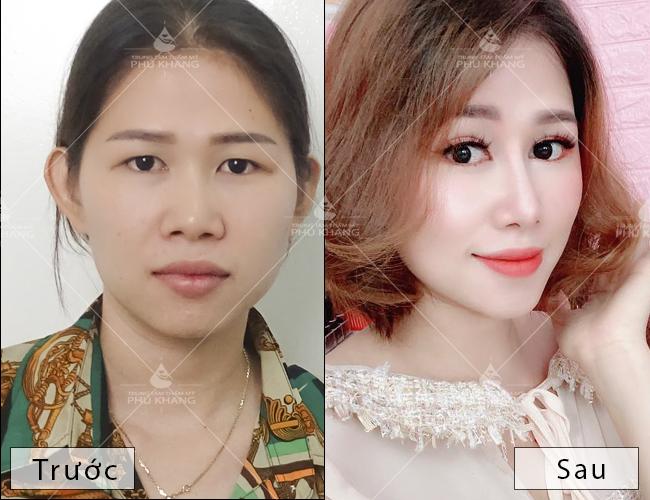 hiệu quả sau khi cắt mắt tại phú khang