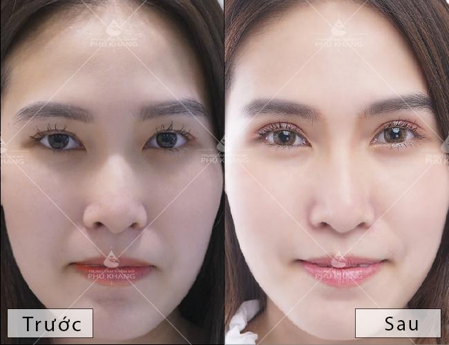 kết quả sau khi cắt mí mắt