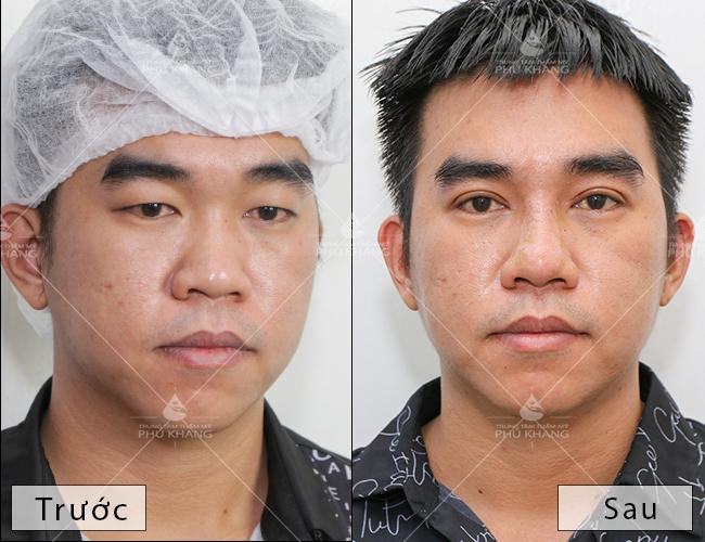 khách hàng sau khi cắt mí mắt tại phú khang
