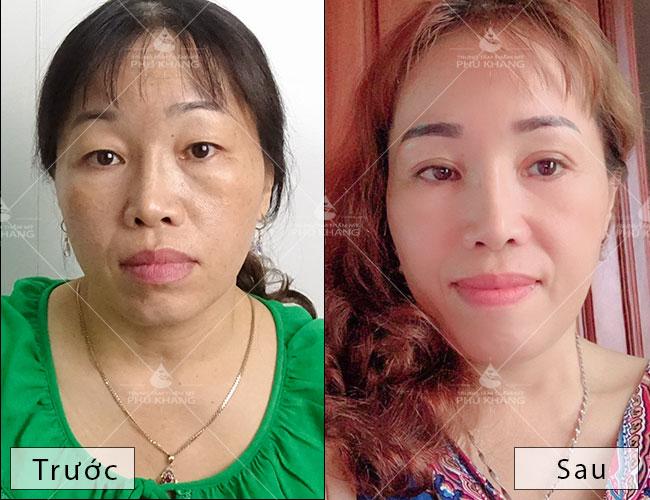 kết quả sau khi cắt mí mắt tại phú khang