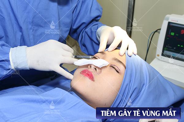 tiêm tê trước khi thực hiện chỉnh sửa cắt mí mắt bị hỏng