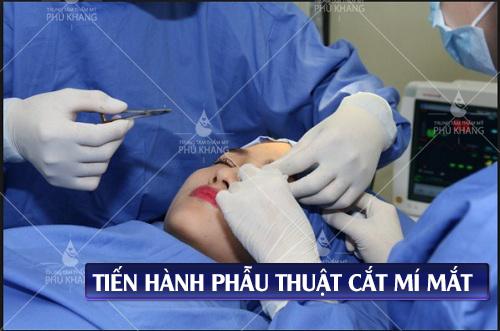 tiến hành phẫu thuật cắt mí mắt