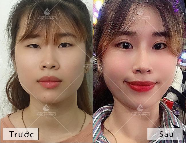 hiệu quả sau khi nhấn mí mắt tại Phú Khang