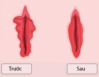 phẫu thuật tạo hình môi bé