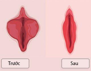 cắt môi cô bé , tạo hình môibé đẹp