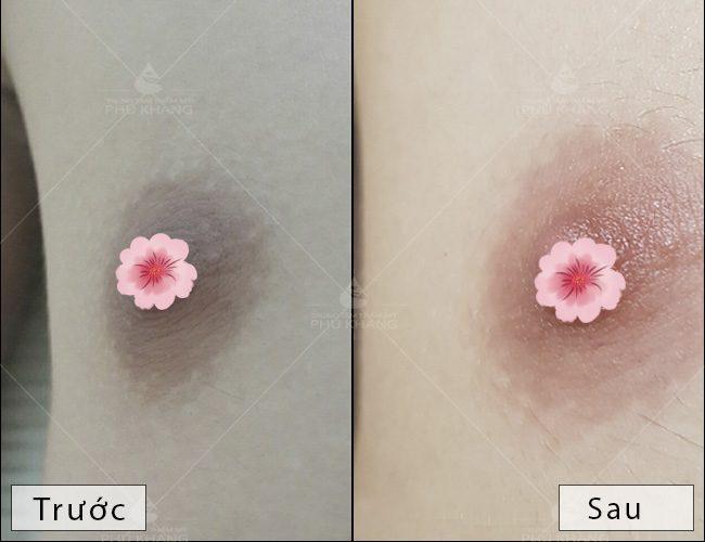 làm hồng nhũ hoa an toàn và hiệu quả