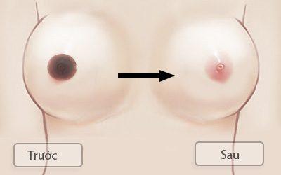 lam hồng nhũ hoa trước và sau