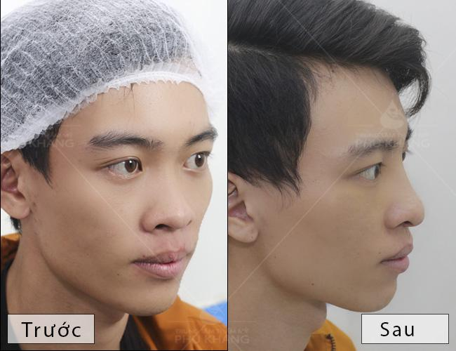 khách hàng nâng mũi đẹp , chi phí nâng mũi