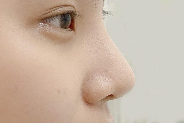 nâng mũi tự nhiên , nâng mũi sụn tai