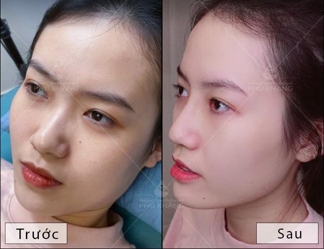 kết quả sau khi tiêm filler mũi , tiêm mũi