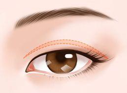 2 mắt không đều , cắt khoé mắt trong và ngoài