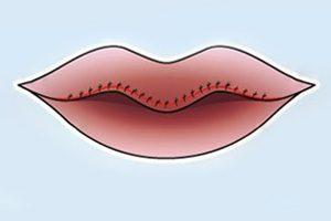cắt môi mỏng , phẫu thuật cắt môi