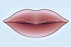 khách hàng sau khi cắt môi dày